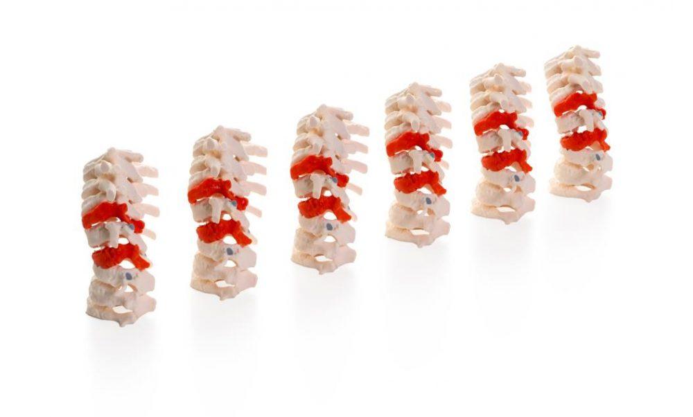 J5 MediJet Spine Models