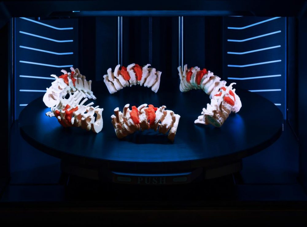 J5 MediJet Spine Models on J5 MediJet Tray
